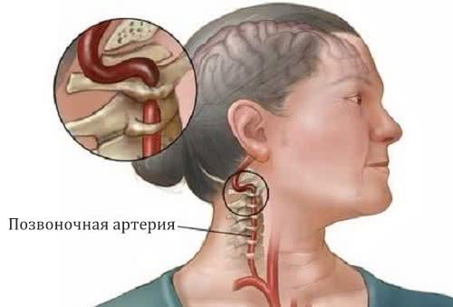 Передавливание позвоночной артерии