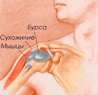 Бурсит плечевого сустава фото