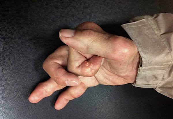 Пальцы рук суставы