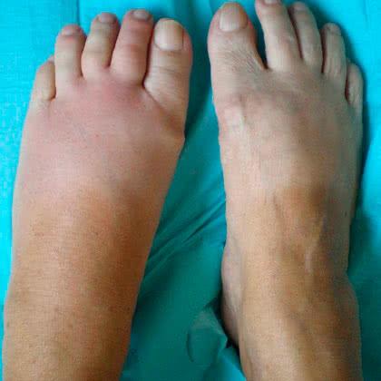 Полиостеоартроз стопы