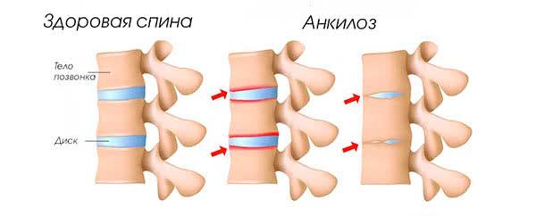 Анкилоз на фото