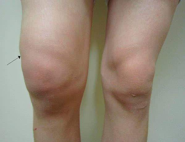 Почему хрустят колени