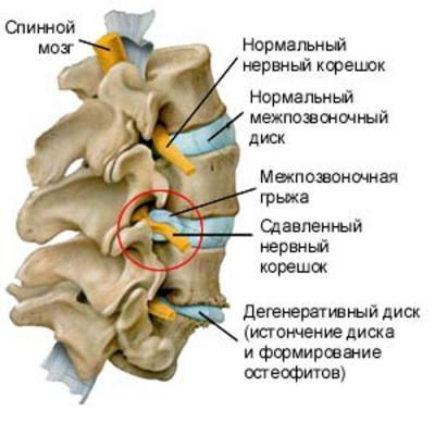Сдавливание нервных корешков при остеохондрозе