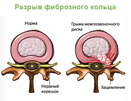 Ядро диска выпадает из фиброзного кольца и образовывается межпозвонковая грыжа