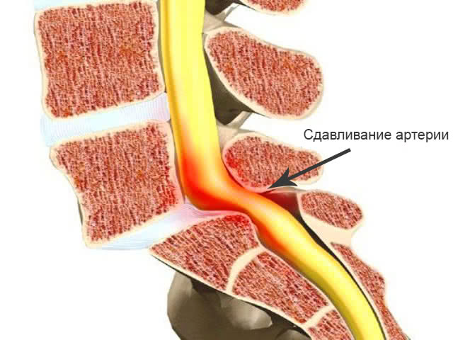 Сдавливание позвоночных артерий при шейном остеохондрозе