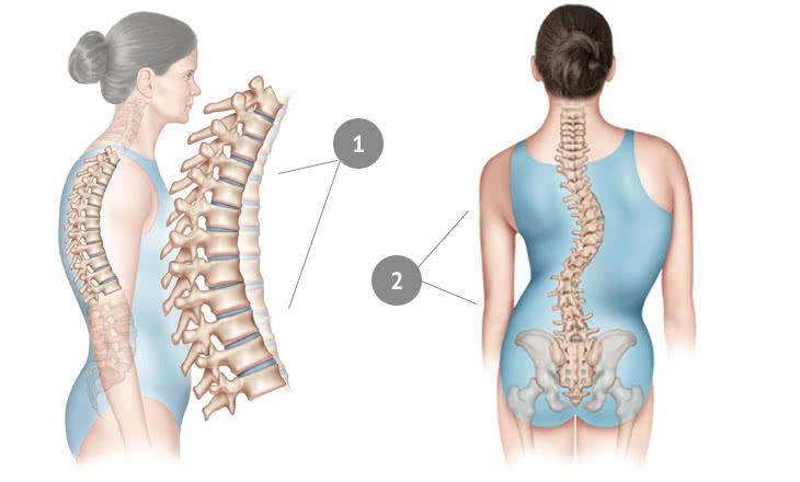 Искривление позвоночника в грудном отделе