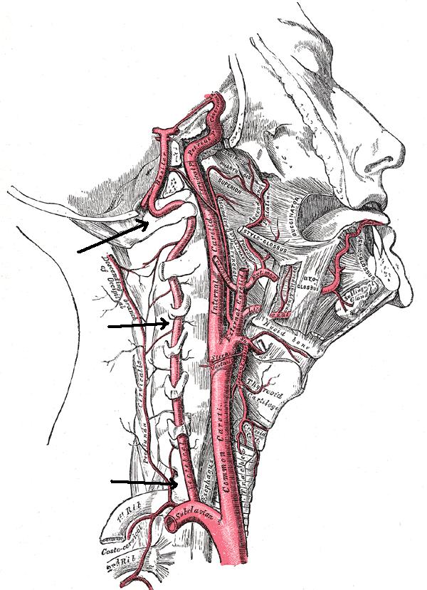 Как выглядит позвоночная артерия