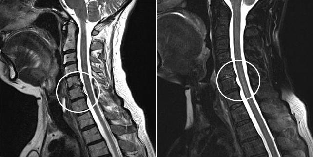 Шейный остеохондроз на снимке МРТ