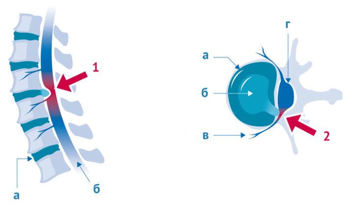 Выпячивание межпозвоночного диска и сдавливание сосудов спинного мозга