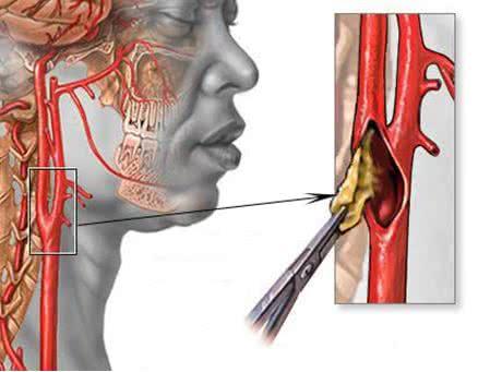 Пережатие артерии в шейном отделе позвоночника симптомы