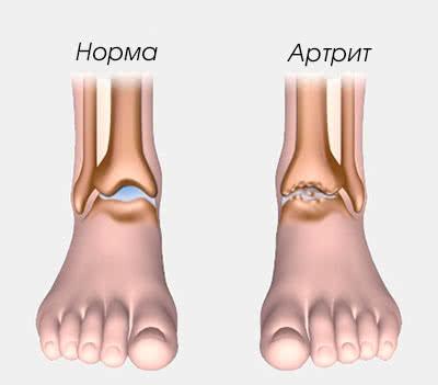 Артрит голеностопного сустава симптомы и лечение причины стадии фото
