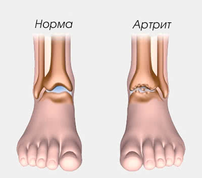 Симптомы артрита голеностопного сустава
