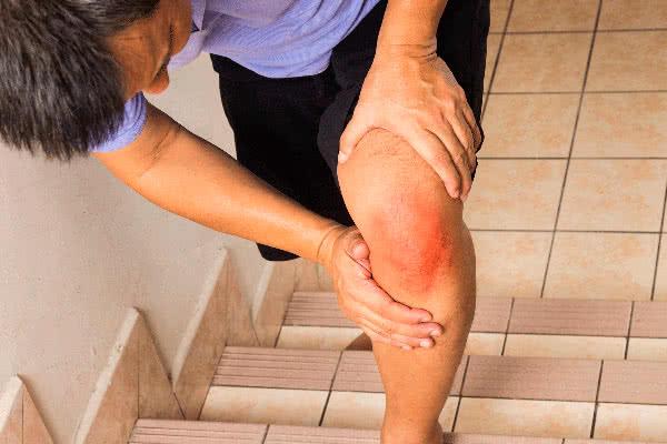 Посттравматический артрит колена