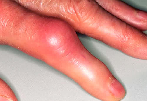 Реактивный артрит фото