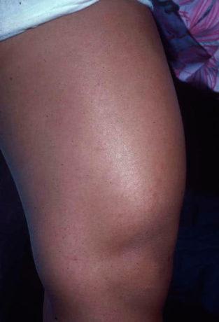 Симптомы синовита колена