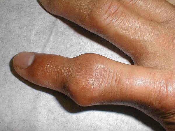 Подагра на пальцах рук