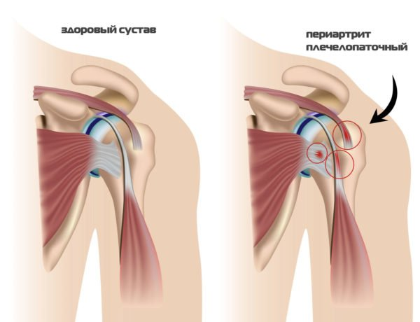 Обезболивающие при периартрите плечевого сустава