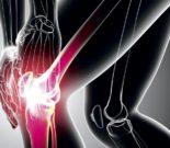 «Лошадиная сила» для суставов — обзор препарата