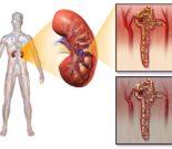 Подагрическая нефропатия — как распознать симптомы? Методы лечения