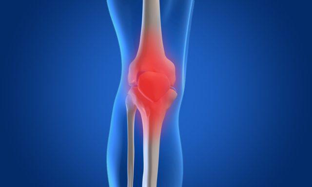 Что такое остеоартрит и как его лечить