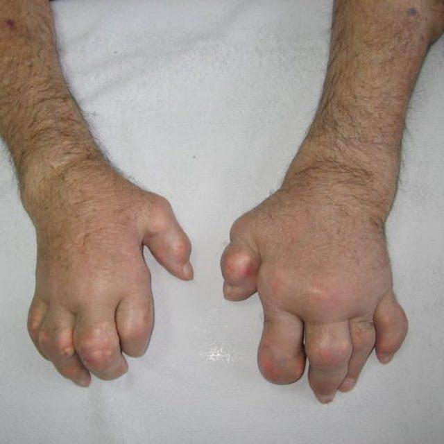 Гиперурикемия что за болезнь