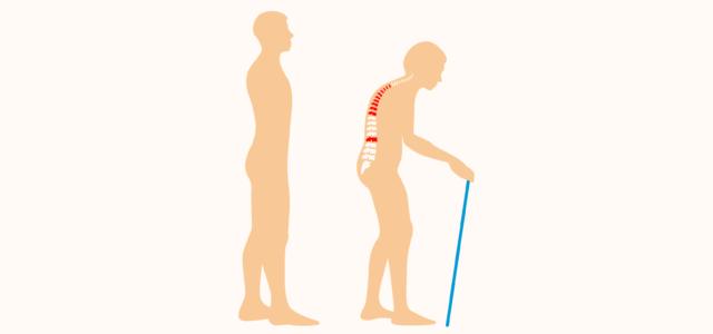 Симптомы серонегативный спондилоартрит